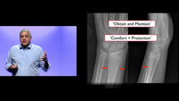 EEM 2019 2 Fracture Reduction Pro-tips.mp4